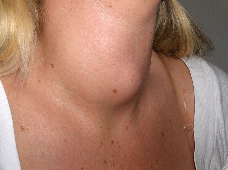 Reducing The Risk Of Thyroid Disease Vegetarians Of Washington